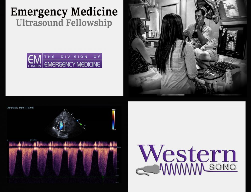 Emergency Medicine Ultrasound Fellowship