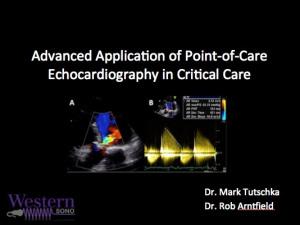 echocardiographi photo